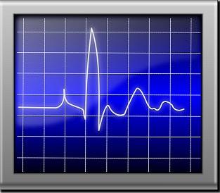 la pulsation cardiaque n'est pas toujours régulière